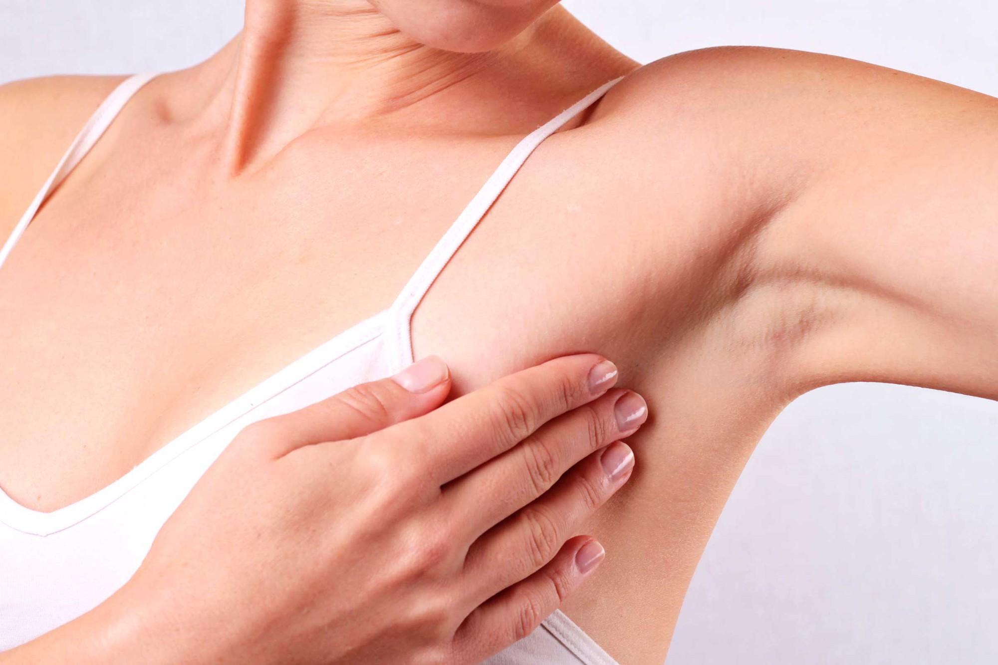 dấu hiệu nhận biết ung thư vú