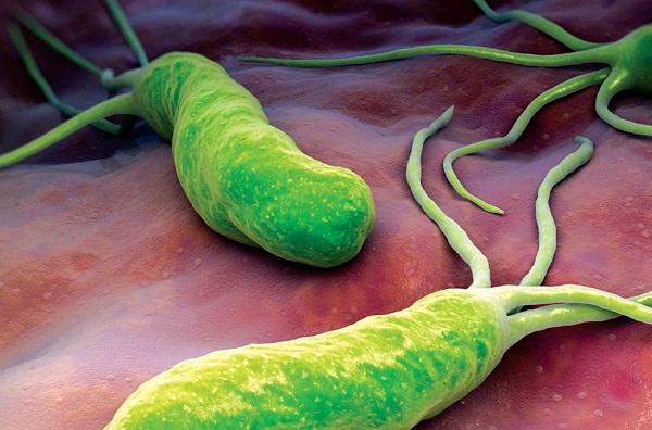 Vi khuẩn HP gây ung thư dạ dày