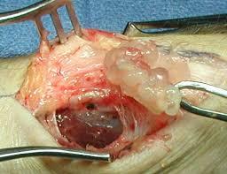 phẫu thuật u nang bao hoạt dịch