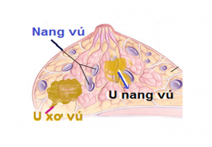 U nang tuyến vú