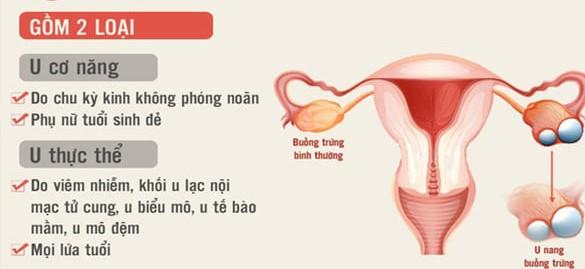 u nang buồng trứng cơ năng và thực thể