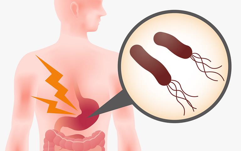 Vi khuẩn HP nguyên nhân gây ung thư dạ dày